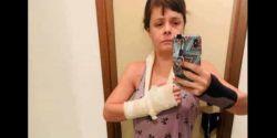 Polícia indicia 14 por festa em que médica foi espancada